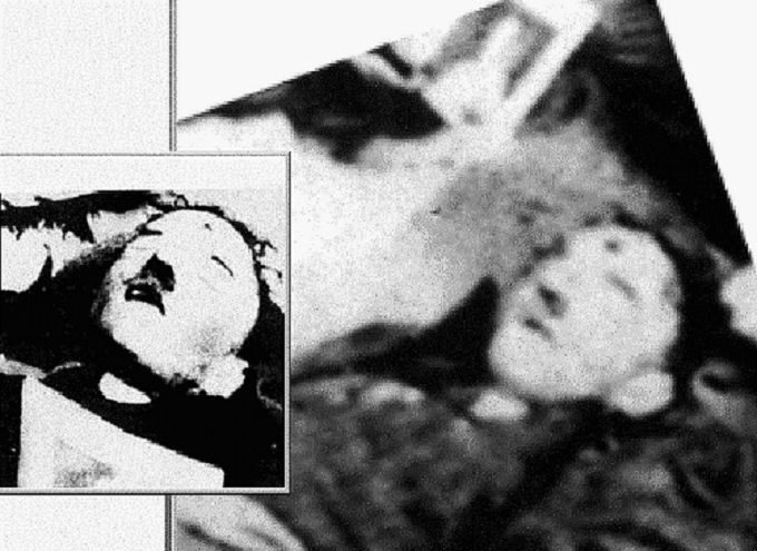Adolf Hitler's suicide shot to the head