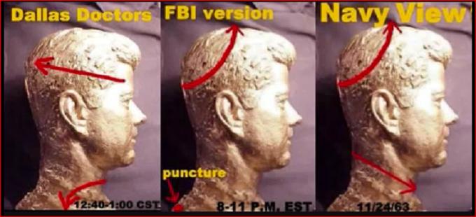 JFK Dallas Doctors FBI Navy