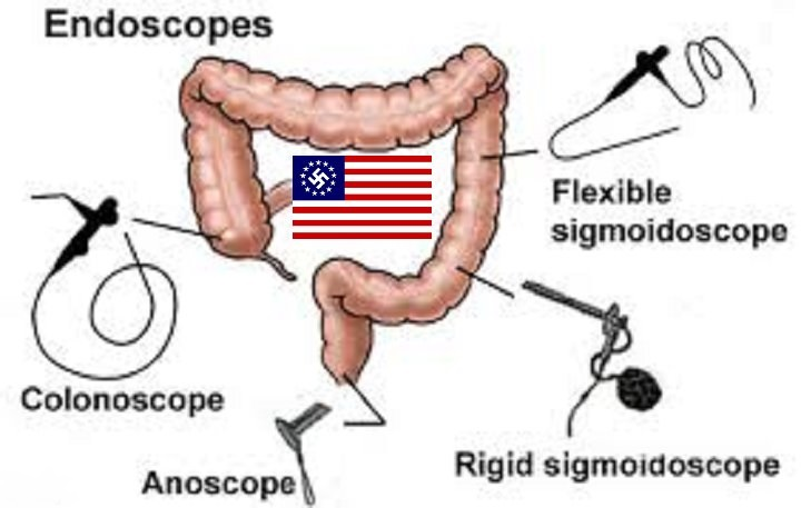 american-nazi-sigmoidoscopy