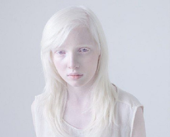 very-albino-girl-720-crop